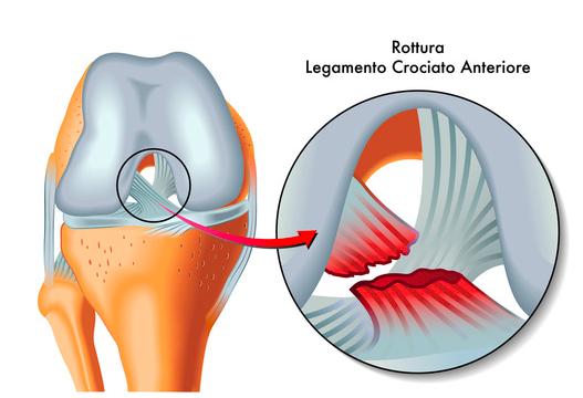 rottura legamento crociato e idrokinesiterapia