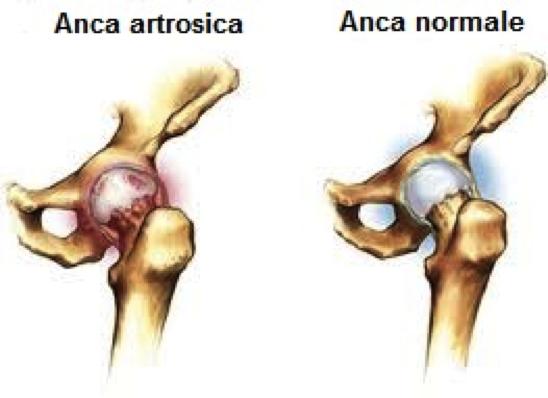 artrosi dell'anca cos'è e quali sono i sintomi principali
