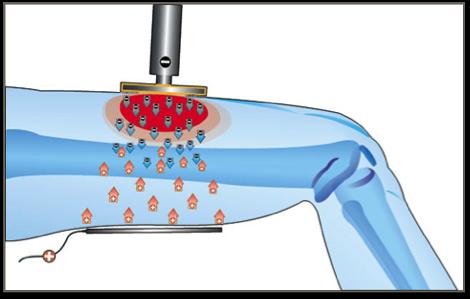 come funziona la Tecarterapia