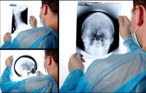 Ernia cervicale come effettuare la diagnosi