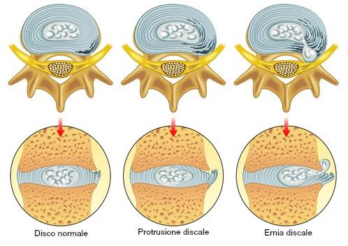 ernia cervicale anatomia e disfunzione