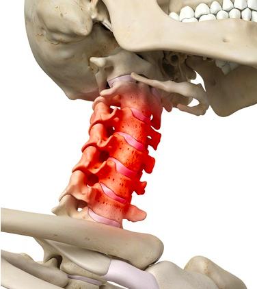 posturale per la cervicale infiammata