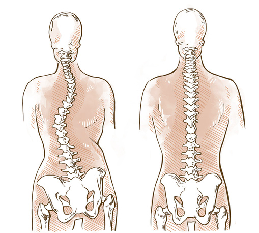 scoliosi e ginnastica posturale gli esercizi correttivi e di prevenzione