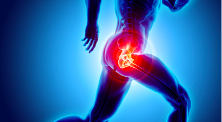 Dolore all'anca (coxalgia): a cosa è dovuto?