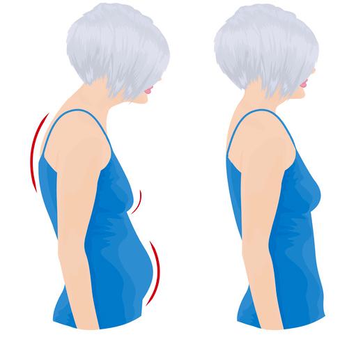 cervicalgia alterazioni posturali e srutturali