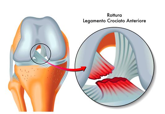 ginocchio funzione articolare e lesioni dei legamenti