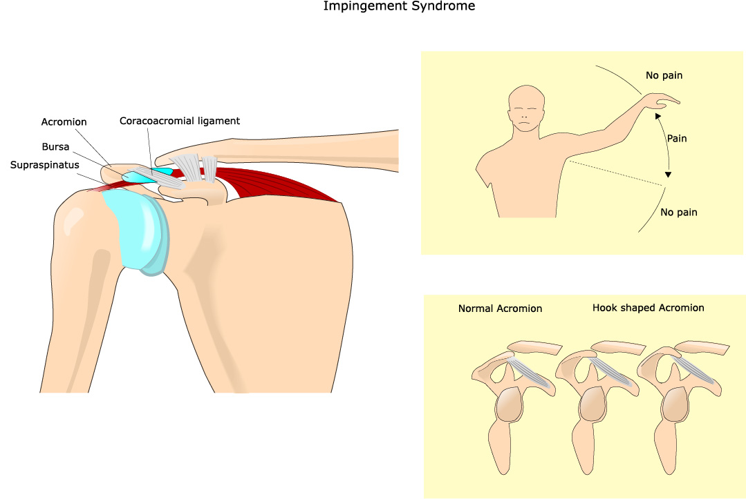 dolore alla spalla impingement
