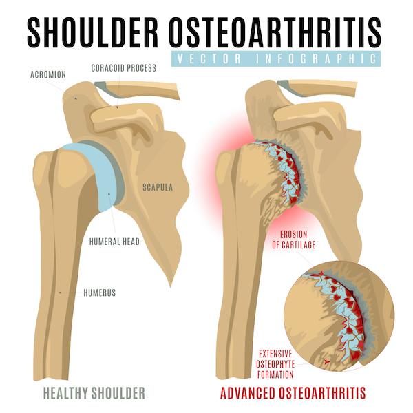 dolore alla spalla osteoartrosi