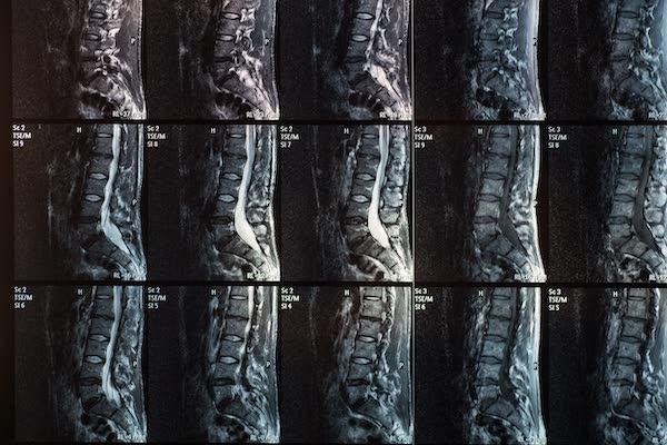 diagnosi patologie rmn