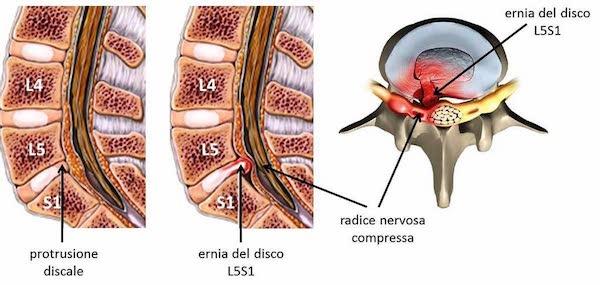 ernia del disco e protrusione