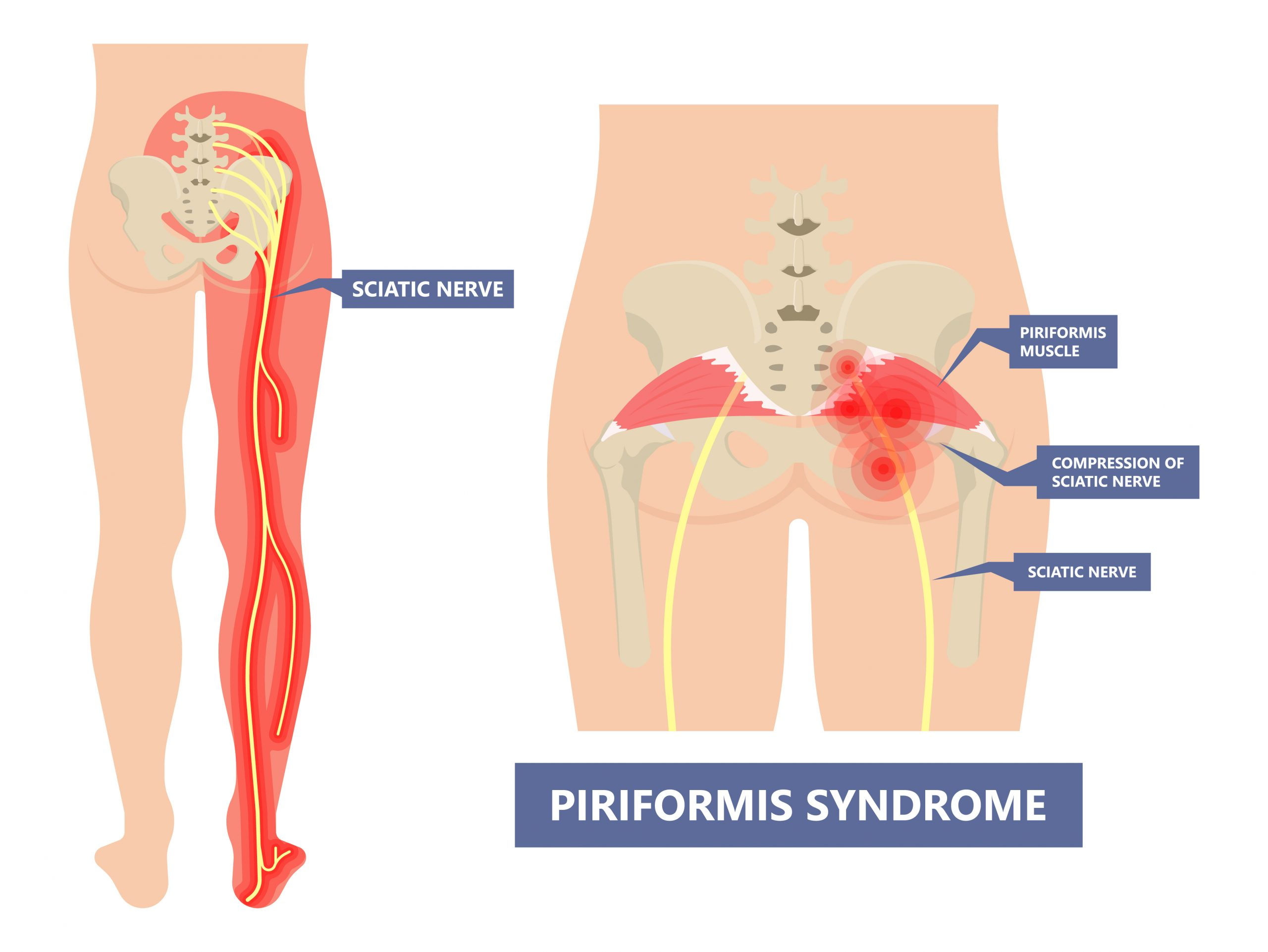 Piriformis syndrome pain and numbness in buttocks and down the back of leg