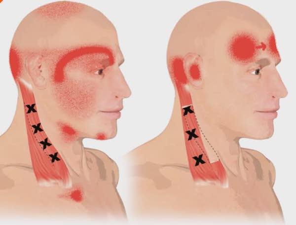 I sintomi del dolore allo sternocleidomastoideo