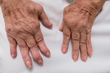 artrosi alle mani e noduli ossei