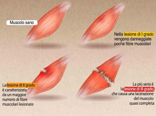 strappo muscolare cause e classificazione