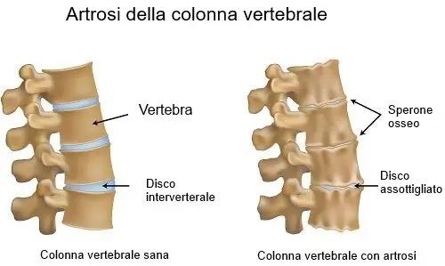 villa-ardeatina-fisioterapia-colonna-1.jpeg