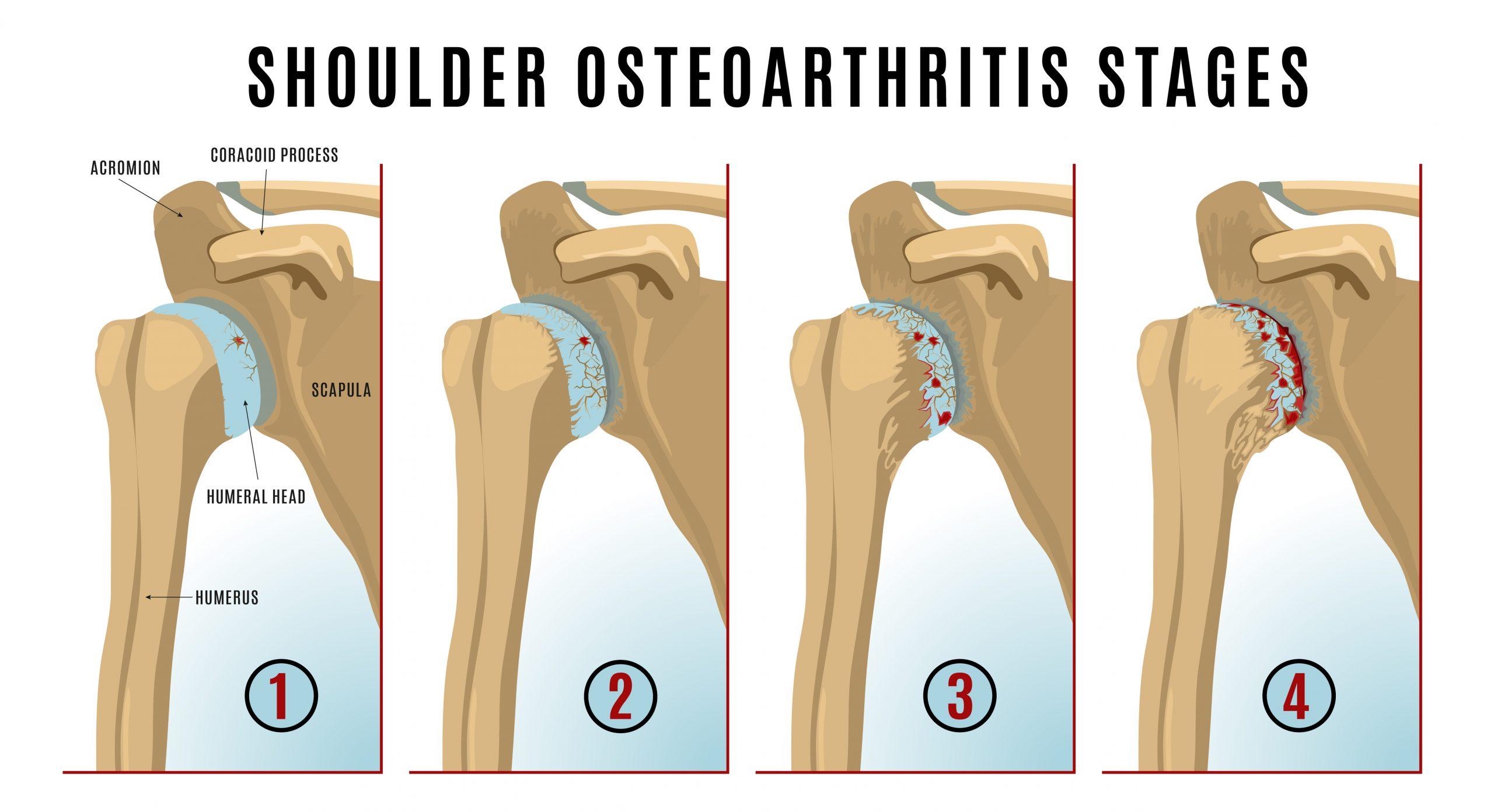 Shoulder osteoarthritis infographic