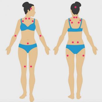 fibromialgia di cosa si tratta
